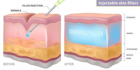 Injection filler injection under the skin, dermal layer, vector illustration