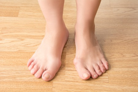 pies: hallux valgus, juanete en el pie, dolor en las piernas, sobre un fondo de madera Foto de archivo