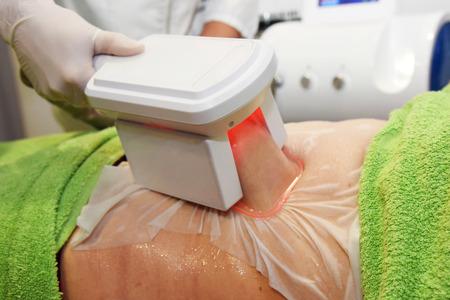 Cryolipolyse. Hardware cosmetologie. Lichaamsverzorging. Niet-chirurgische lichaamssculptuur. lichaamscontourbehandeling, anti-cellulitis en anti-vettherapie in schoonheidssalon.