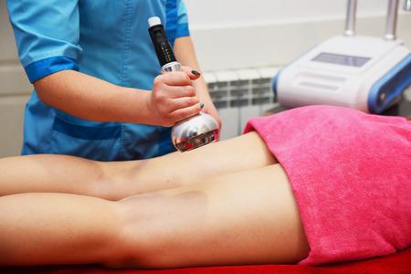 Estiramiento de la piel por radiofrecuencia. Masaje al vacío. Cosmetología de hardware. Cuidado del cuerpo. Escultura corporal no quirúrgica. Terapia anticelulítica y antigrasa en salón de belleza. Foto de archivo