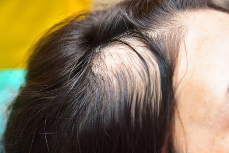 Treatment of baldness with beauty injections. Cosmetologist's hands in gloves make a subcutaneous injection. 版權商用圖片