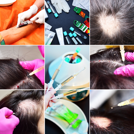 Treatment of baldness with beauty injections. Cosmetologist hands in gloves make a subcutaneous injection. Plasmalifting