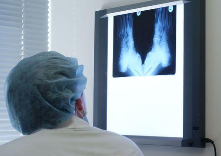 pies masculinos: Buscando el m�dico de rayos X disparo