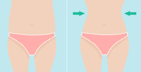 cellulite: Waist weight loss vector illustration before and after result Illustration