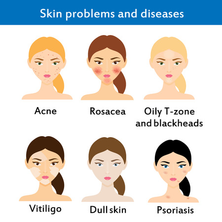 Skin problems and diseases. Acne, rosacea, vititligo and others. Vector illustration