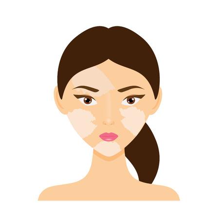 Woman face with vitiligo skin disease. Vector illustration
