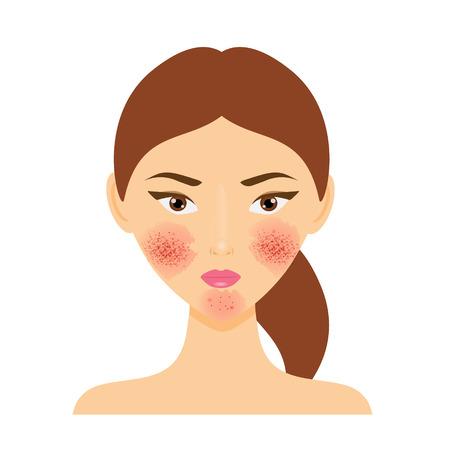 trastorno: Mujer con la rosácea, enfermedad de la piel psoriasis Vectores