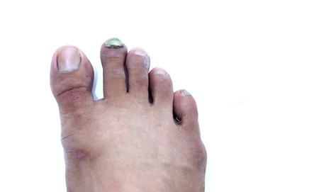 Broken toe nail,Onychomycosis, Nail Fungus. photo