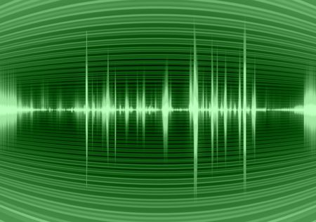 Graphic of a digital sound Stock Photo - 2644308
