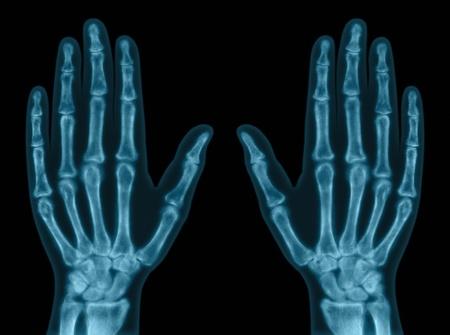 fractura: Rayos x de ambas manos. Concepto de examen. Foto de archivo