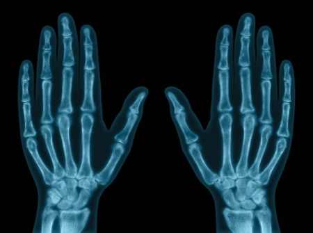 right hand: X-ray of both hands. Concept of exam. Stock Photo
