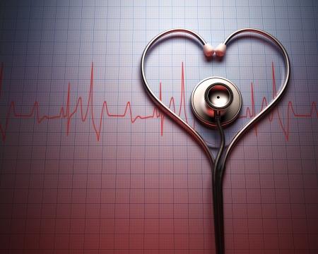 Stéthoscope en forme de coeur sur un graphique de rythme cardiaque du patient.