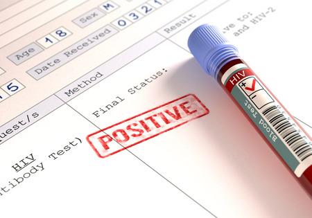 HIV 검사의 결과가 담긴 이미지 개념. 스톡 콘텐츠