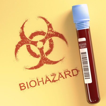 test paper: Test tube with contaminated blood. Symbol on paper indicating danger. Clipping path included.
