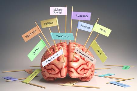 convulsión: Imagen de un cerebro en la mesa con varias placas de identificación de diversas enfermedades que pueden afectar a nuestro cerebro. Es una imagen 3D con placas pegadas por el palillo de dientes. Aseguramiento camino. Foto de archivo