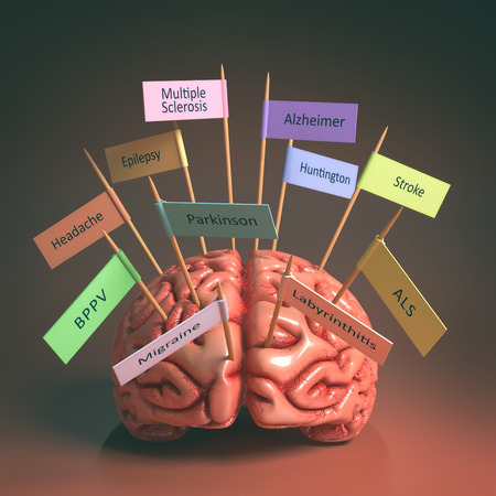 headaches: Image of a brain on the table with various nameplates of various diseases that can affect our brain. Its a 3D image with nameplates stuck by toothpick. Clipping path included.