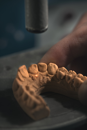 prosthodontics: Dental prosthesis, artificial tooth, prosthetic, hands working on the denture, false teeth. Stock Photo
