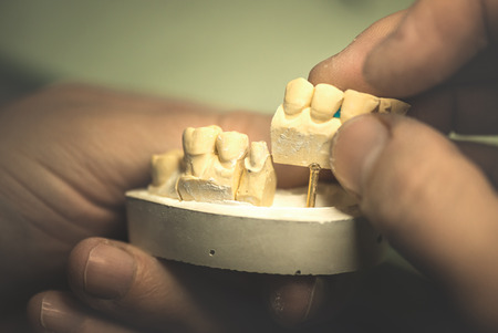 Dental prosthesis, artificial tooth, prosthetic, hands working on the denture, false teeth. Stockfoto