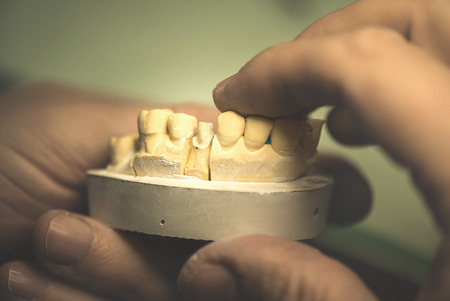 mastication: Dental prosthesis, artificial tooth, prosthetic, hands working on the denture, false teeth. Stock Photo