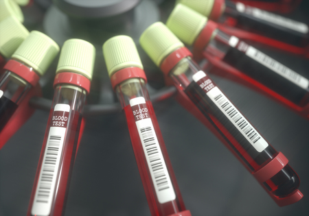 Lab equipment centrifuging blood. Concept image of a blood test.
