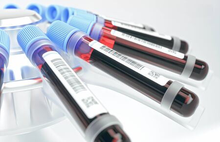 Blood tubes in the centrifuge. Concept image of blood tests, diseases and genetic and laboratory research.