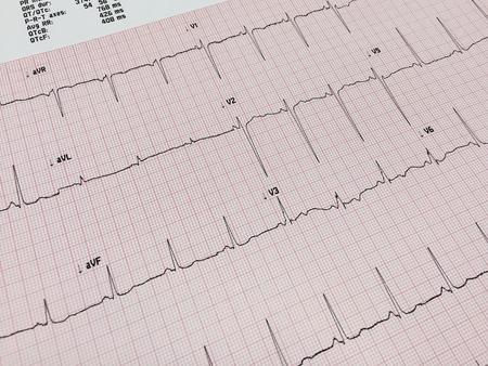 electrocardiograma: Parte de Electrocardiograma Foto de archivo