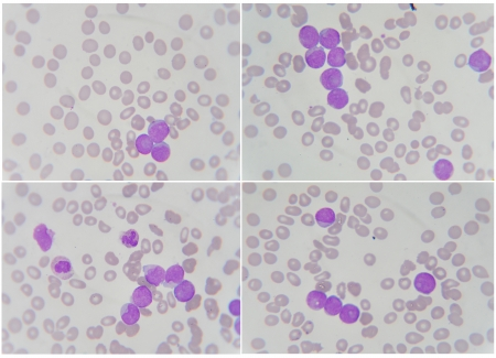package of blood smear show Neutrophil ,White blood cell , Leukemia