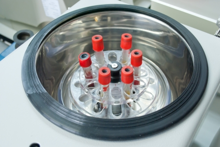technichian add blood tube in to centrifuge for separate serum out of red blood cells Stock Photo