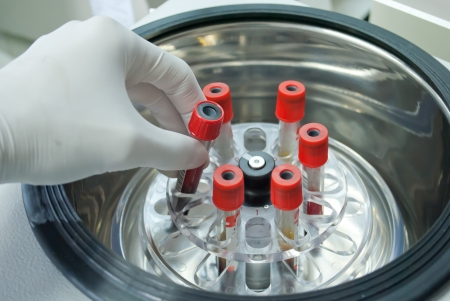 centrifuge: technichian add blood tube in to centrifuge for separate serum out of red blood cells Stock Photo