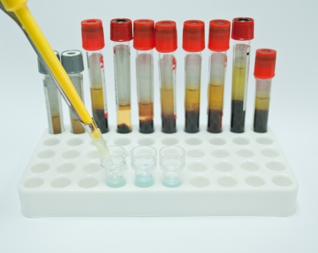 blood tube use for testing in laboratory for diagnosis disease photo