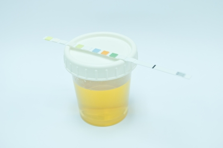 urine for testing in laboratory for diagnosis disease Stock Photo