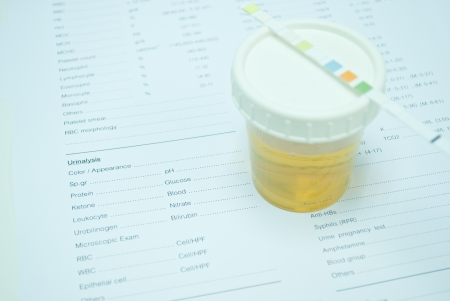 urine for testing in laboratory for diagnosis disease photo