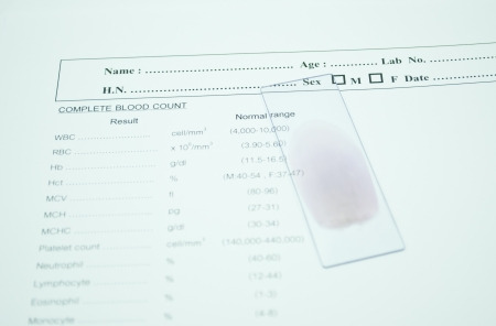 blood smear: blood smear on paper report result in laboratory