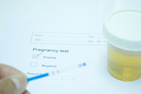 technichain testing urine pregnancy test and reporting result in laboratory Stock Photo - 14475239