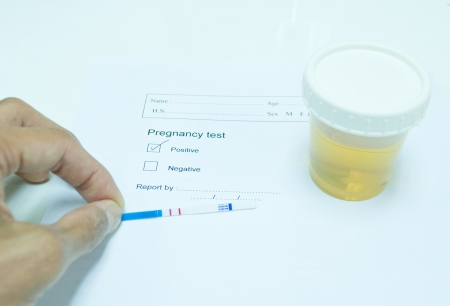technichain testing urine pregnancy test and reporting result in laboratory photo