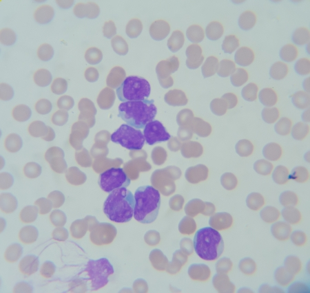 venous: Blood smear show Acute Myelocytosis leukemia (AML I): Myeloblast cells ,Neutrophil Stock Photo