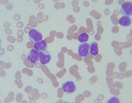 leucemia: Frotis de sangre muestran leucemia aguda Myelocytosis (LMA I): las c�lulas mieloblastos, neutr�filos