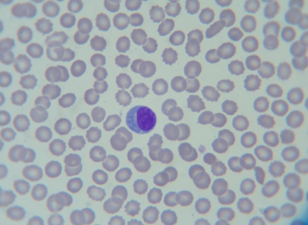 blood smear: Blood smear show Atypical lymphocyte in patient s Dengue fever Stock Photo