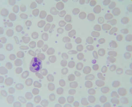 Blood smear show Neutrophil , Lymphocyte , Monocyte , Eosinophil , Basophil