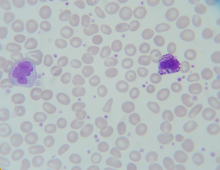 eosinophil: Blood smear show  Monocyte (right) , Basophil (left) Stock Photo