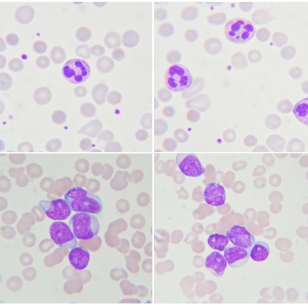 Blood smear show neutrophil and leukemia cells