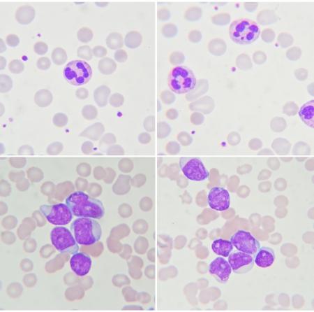 leucemia: Frotis de sangre muestran los neutr�filos y las c�lulas de leucemia Foto de archivo