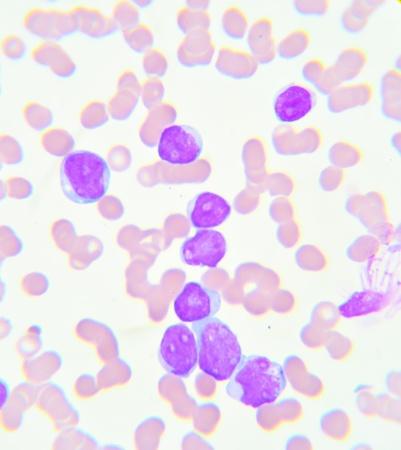 Blood smear show leukemia cells Stock Photo - 21051911