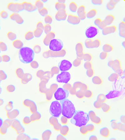 basophil: Blood smear show leukemia cells Stock Photo
