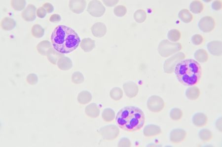 Blood smear show neutrophil  cells