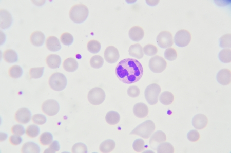 Blood smear show neutrophil  cell Stock Photo - 21051913