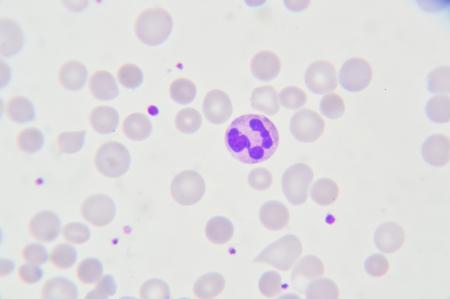 anaemia: Frotis de sangre muestran c�lulas de neutr�filos
