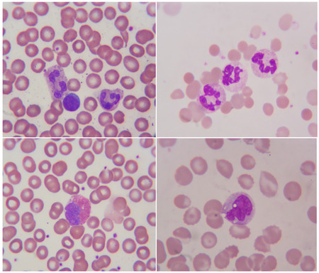 monocyte: human blood cell under microscope 1000x