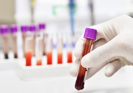 red tube: tubo de la sangre en la mano Foto de archivo