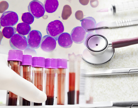 conept: medical conept : scienctist testing , Leukemai cells and medical equipments Stock Photo